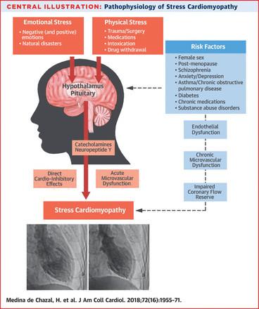 Emoční a fyzické příznaky vedoucí k akutnímu infarktu se mohou nakombinovat.