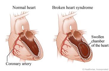 Syndrom zlomeného srdce zajišťuje otok srdeční komory.