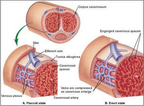 Sexuální dysfunkce ovlivněná cukrovkou.